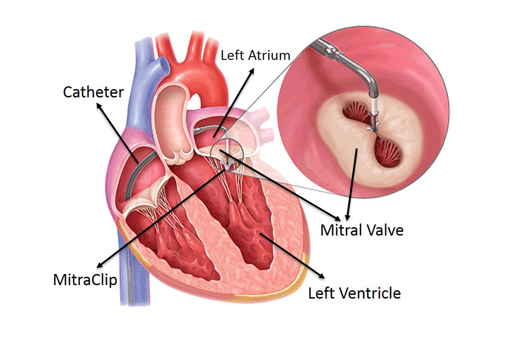 Heart valve repair without open heart surgery performed for the first time in India at Fortis Escorts Heart Institute