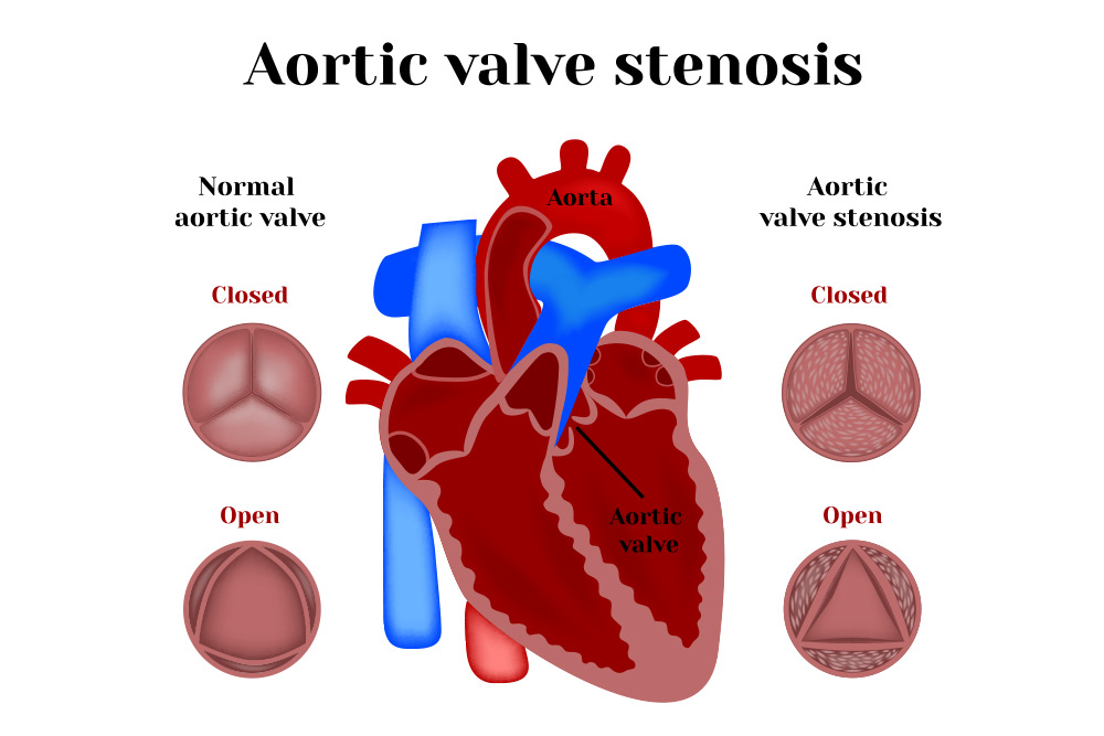 Know about Aortic Valve Stenosis (AS)