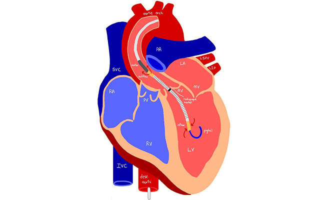 First time in India, world's smallest heart pump that supports failing heart to recover,