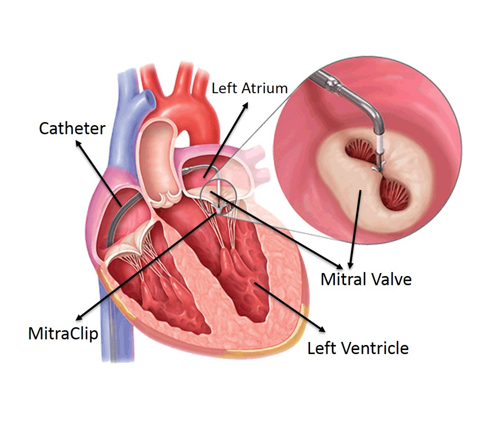 Dr. Procedure to repair heart valve without surgery a success