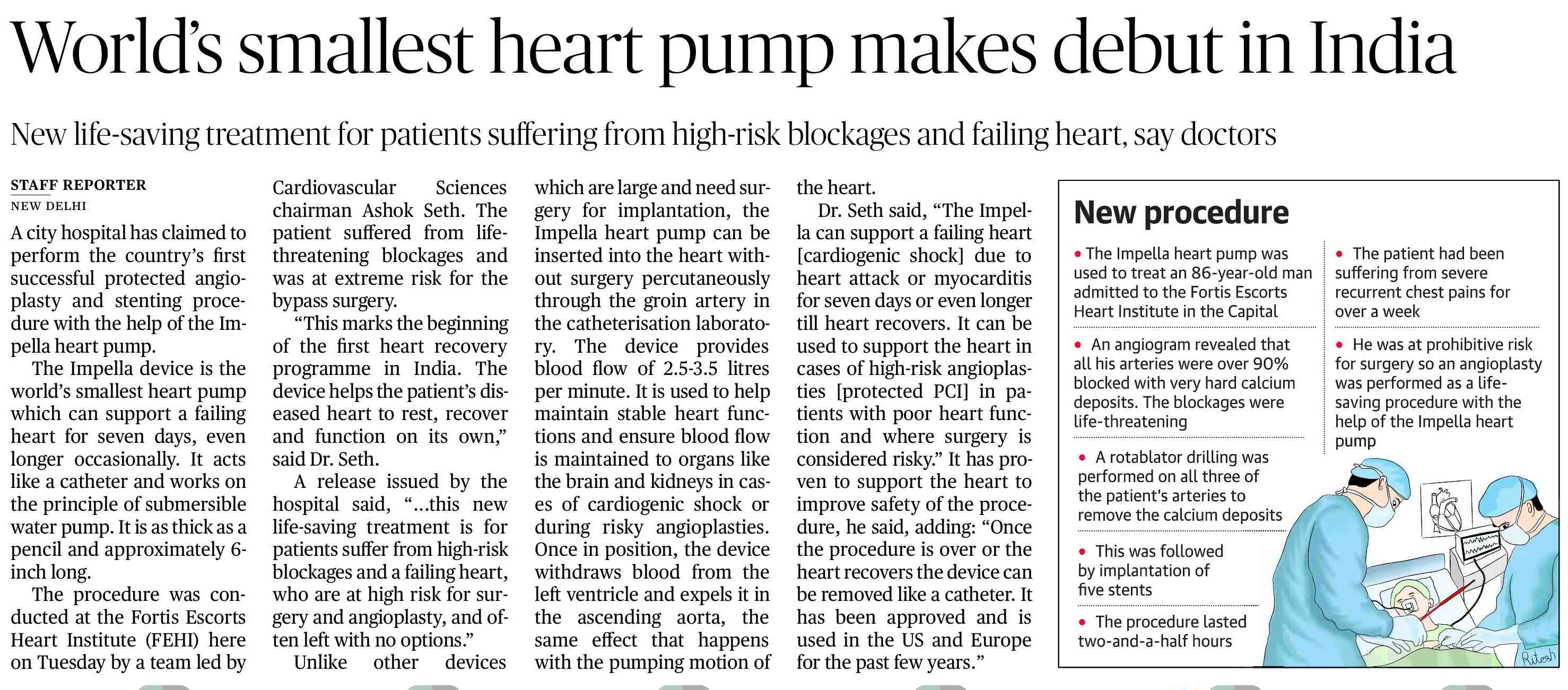 New Miniatured world's smallest Heart Pump that supports failing heart to recover, used for the first time in India