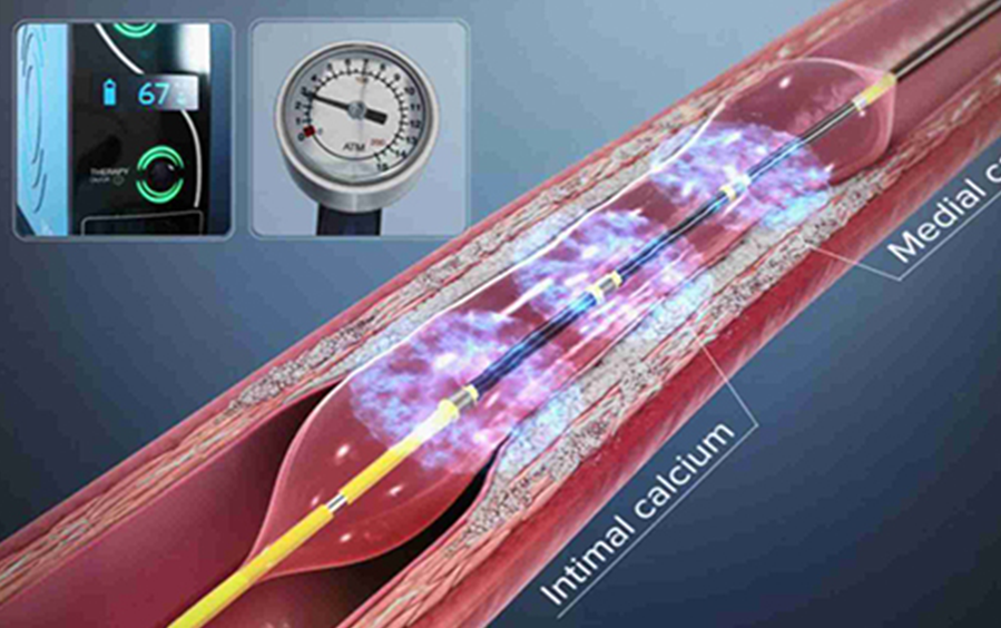 India's first cornoary shockwave lithotripsy saves the life of a 67-year old patient